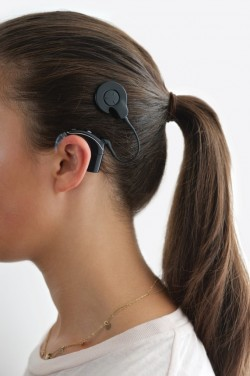 1967 - ..: Invention of the Cochlear Implant by Graeme Clark